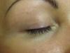 Silmien pigmentointi